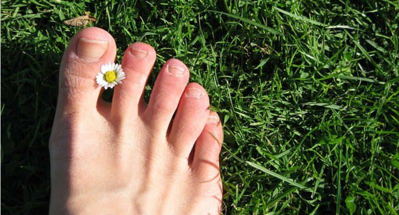 žuti nokti na nogama-1