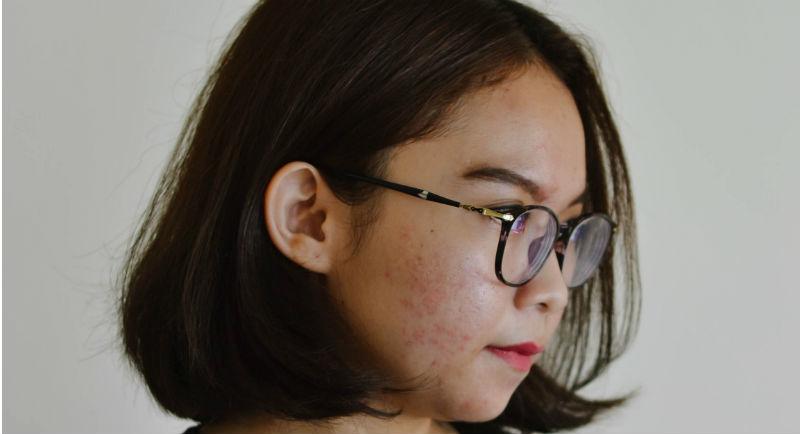 bubuljice kod odraslih na licu