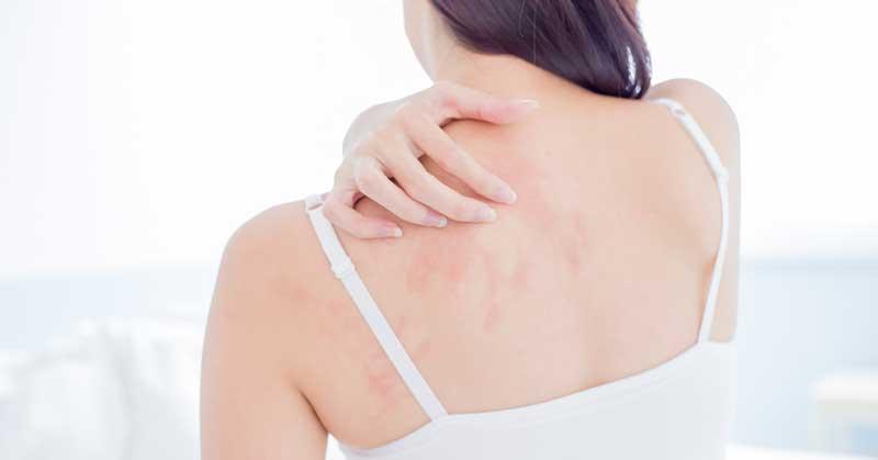 bubuljice na leđima uzrok
