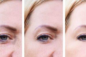 zašto se pojavljuju fleke na koži