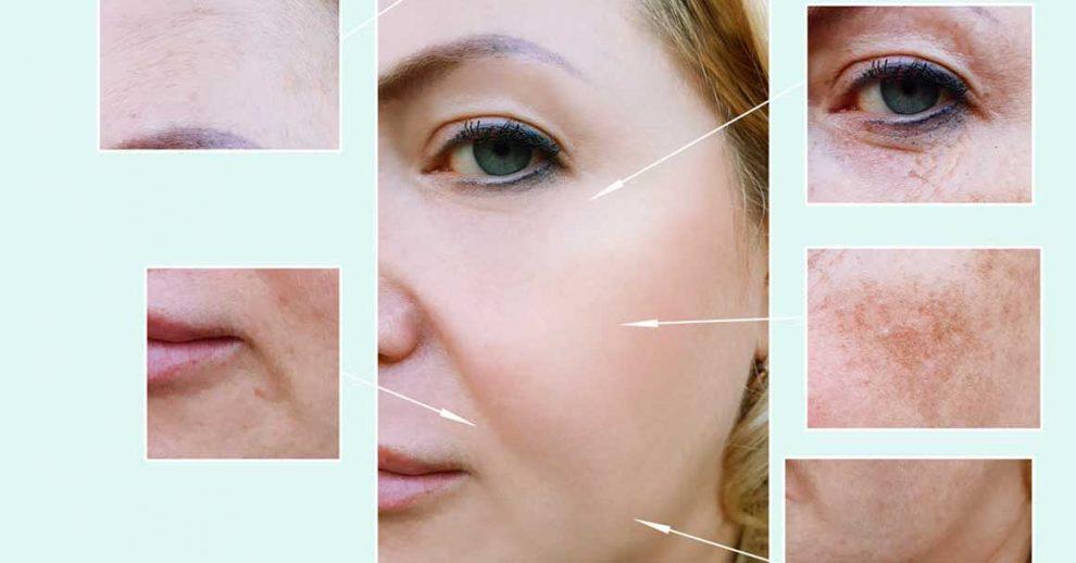kako ukloniti tamne fleke na licu od sunca
