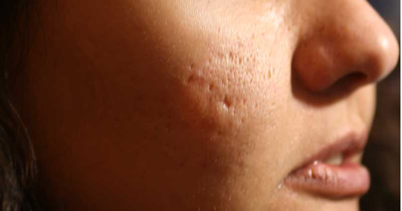 ožiljci od bubuljica