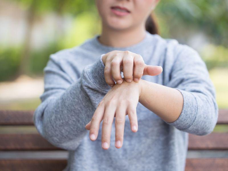 bubuljice na rukama koje svrbe