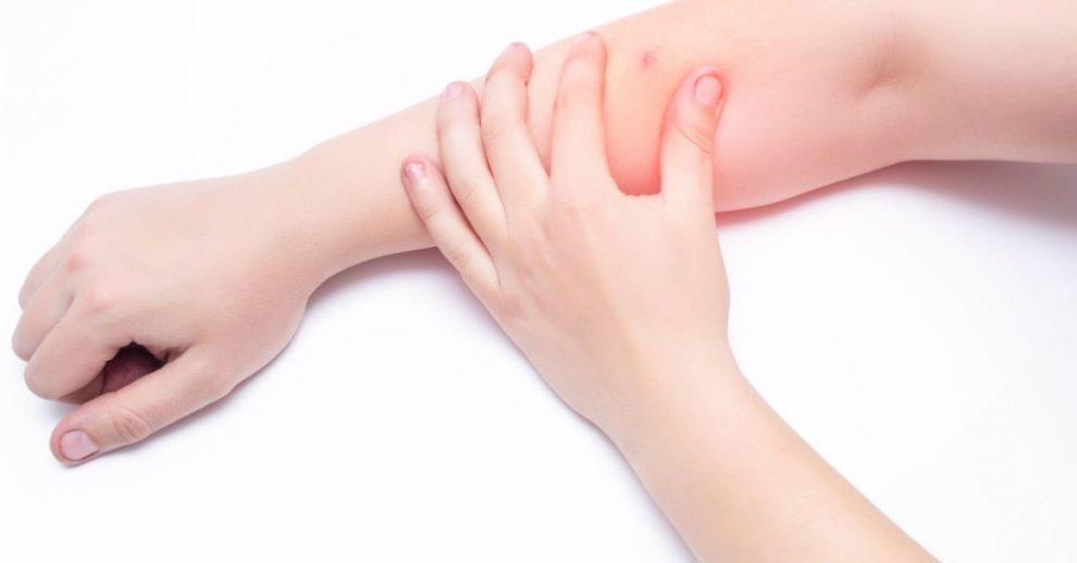 bubuljice na rukama