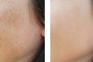 botoks lica