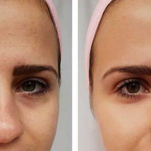 nehirurška korekcija nosa