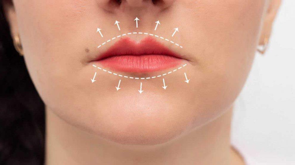 bore oko usana
