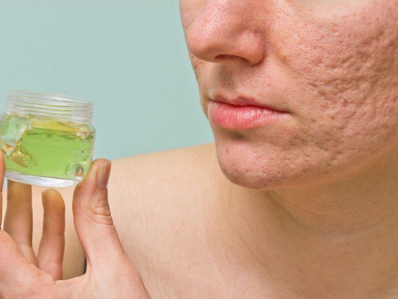 najbolji gel za akne