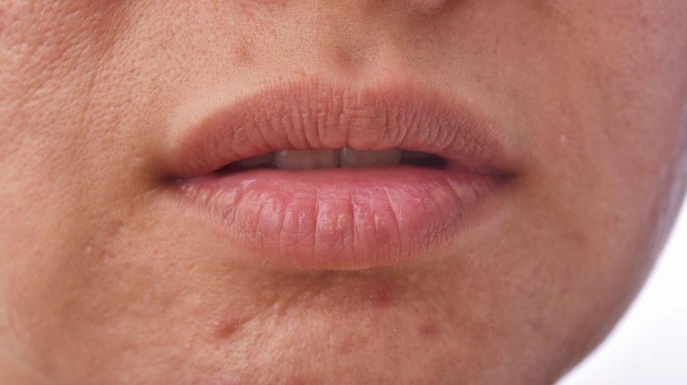 bubuljice oko usta