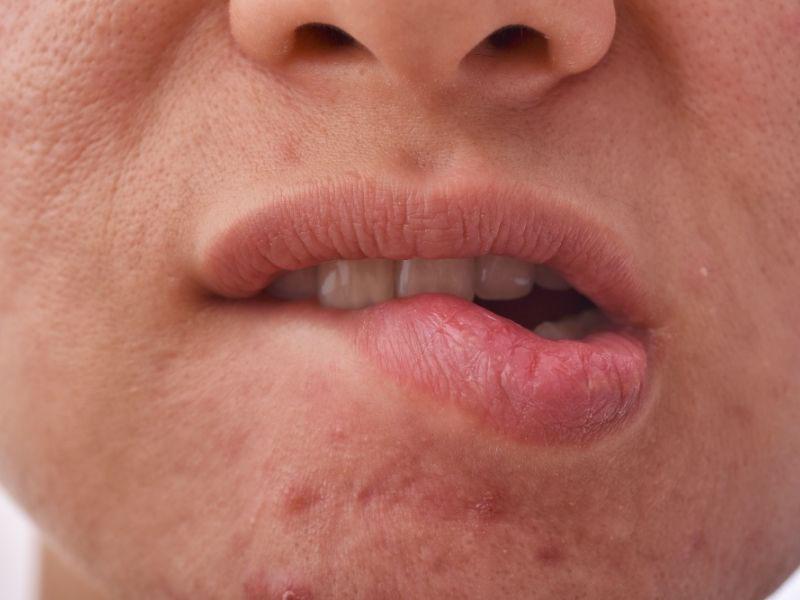 sitne bubuljice oko usta