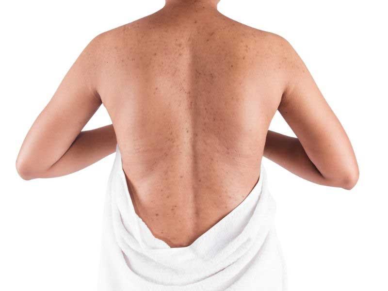 bubuljice po telu na leđima