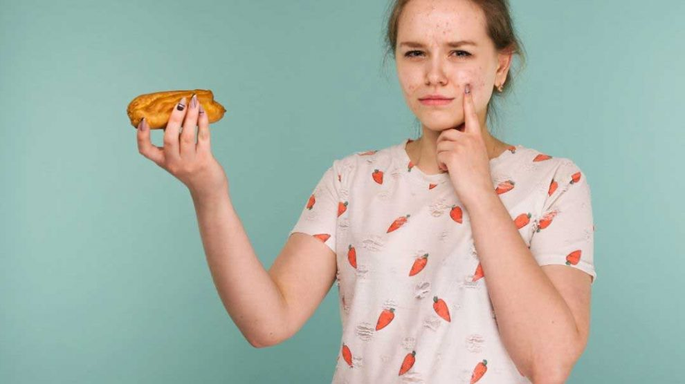 koja hrana izaziva bubuljice