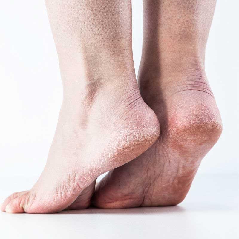 zadebljala koža na stopalima lečenje