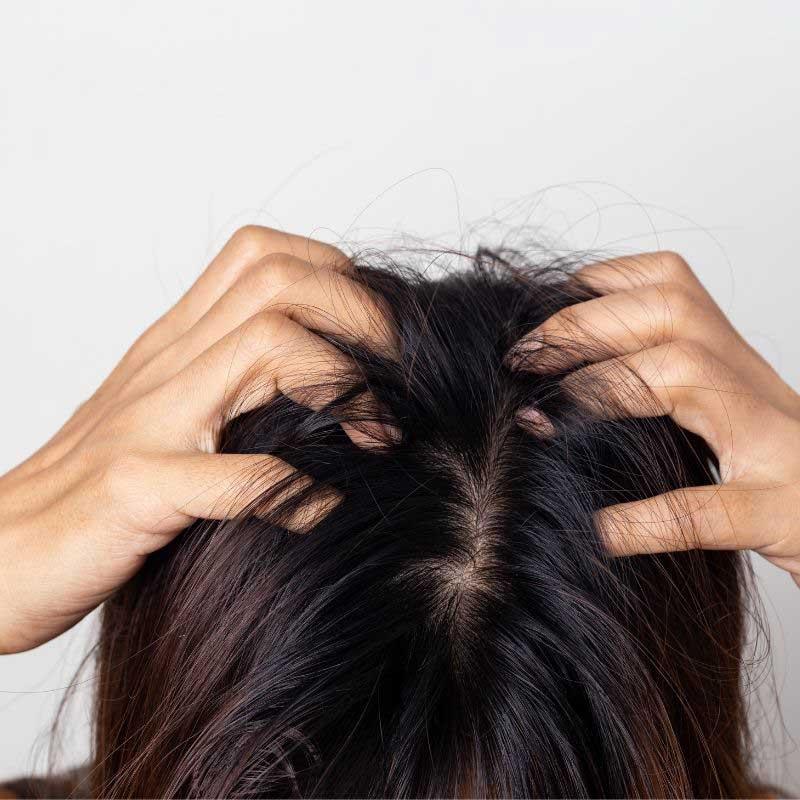 kako negovati masnu kosu