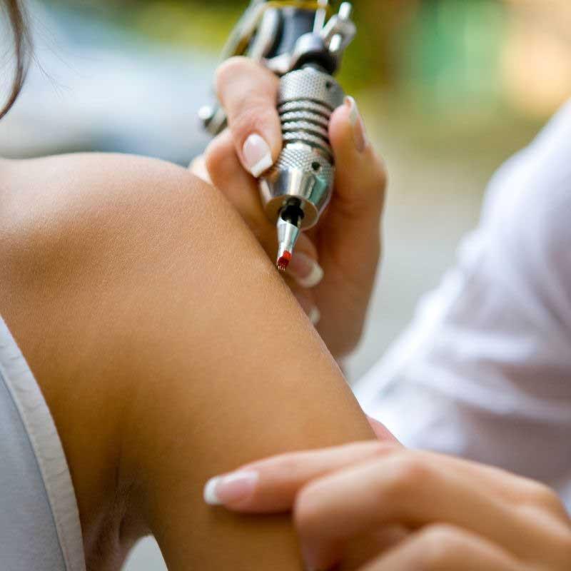 tetoviranje strija