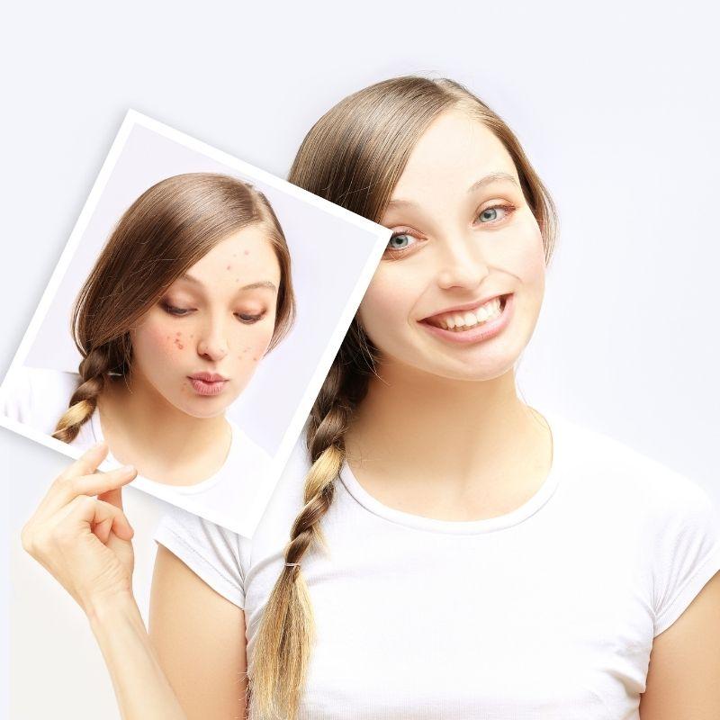 kako ukloniti pubertetske bubuljice