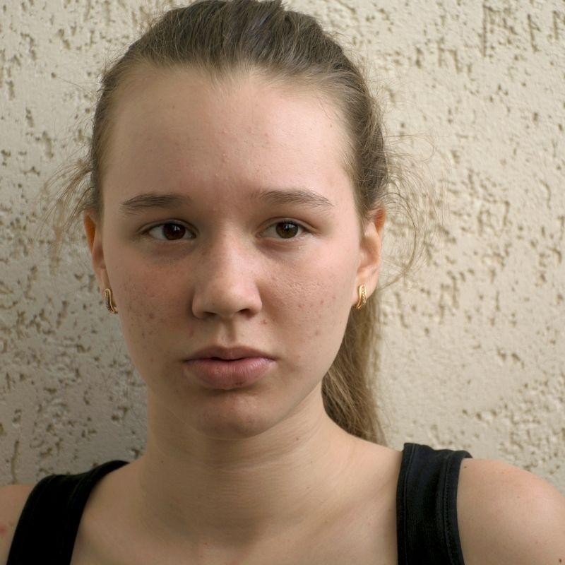 pubertetske bubuljice