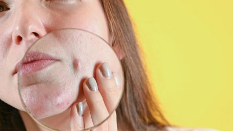 cistične akne na licu